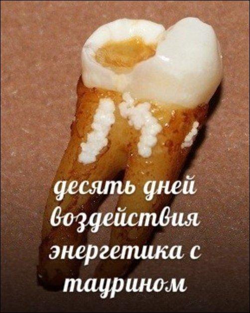 Зубы и популярные напитки
