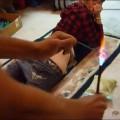 Девушка захотела на попе шрам в форме сердечка
